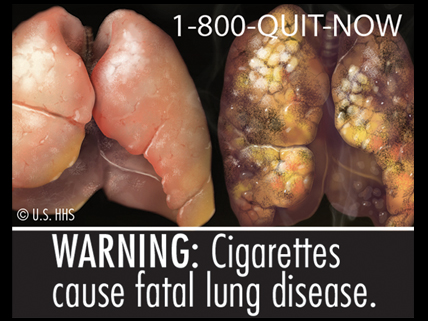 FDA cigarette warning showing healthy and diseased lungs